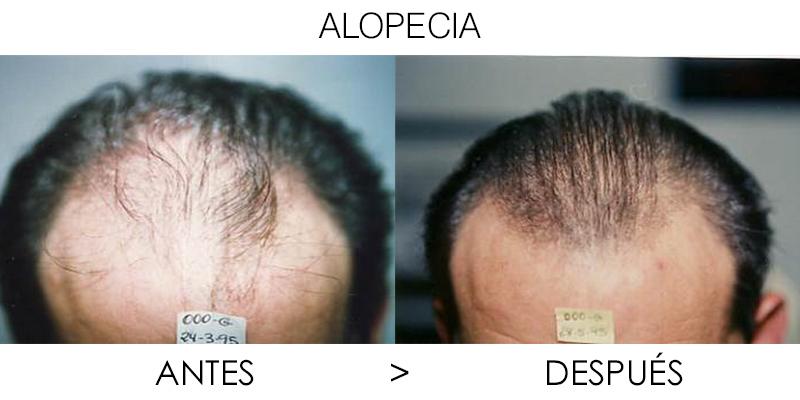 Tratamiento de alopecia en Valencia