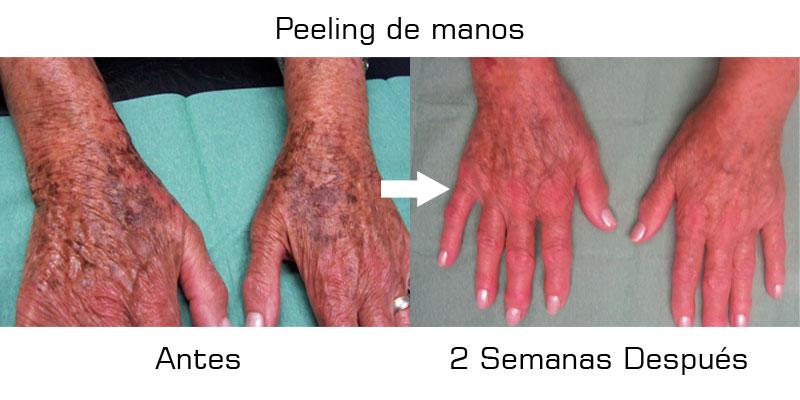 Peelings en Valencia