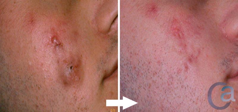 Tratamiento del acné en Valencia